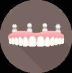 dental implant full arch